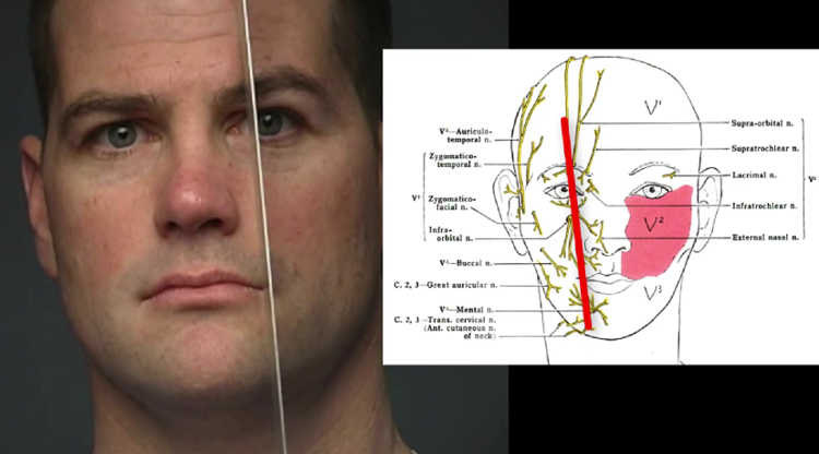 Nerve Blocks of the Face and Mouth — Down East Emergency Medicine