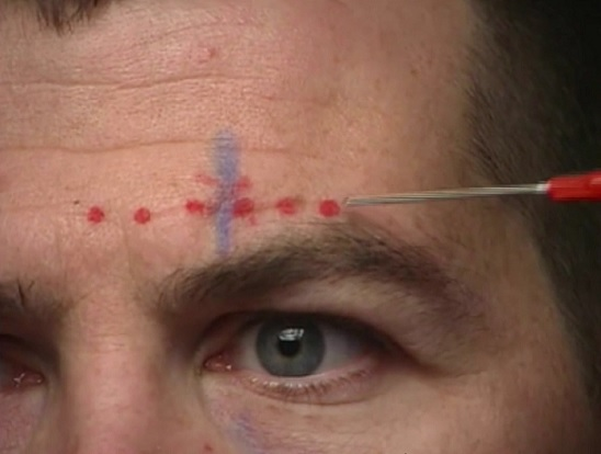 Blue = location of supraorbital nerv; red = tract of anesthetic injection