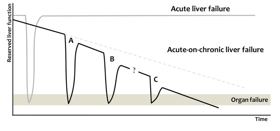 Liver failure acute vs chronic.jpg