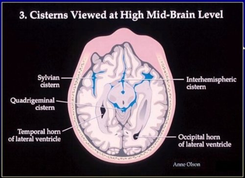 Blood Can Be Very Bad How To Read An Emergent Head Ct Down East