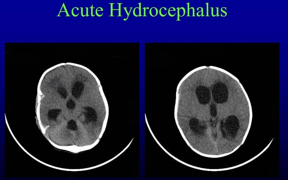 dilated ventricles are seen on this CT brain.  no GrEy-white differentiation or gyral PATTERN suggests this hydrocephalus IS ACUTE.