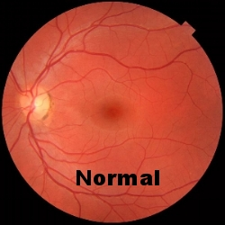 https://fr.wikipedia.org/wiki/Fichier:Fundus_photograph_of_normal_left_eye.jpg