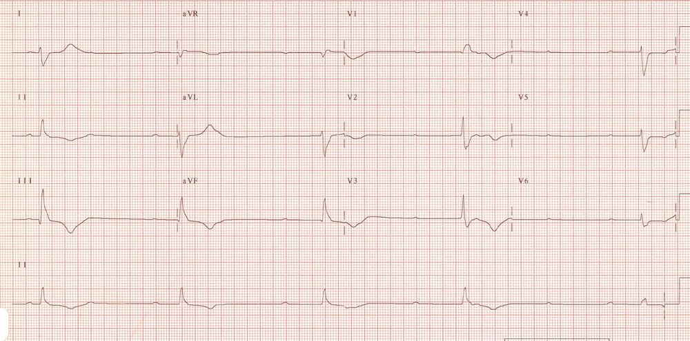 https://lifeinthefastlane.com/ecg-library/basics/complete-heart-block/