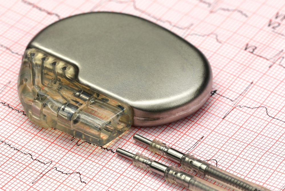https://www.shutterstock.com/image-photo/close-pacemake-on-electrocardiograph-333628025?src=WuSf81e8_KBAq-1bPpc8jA-1-4