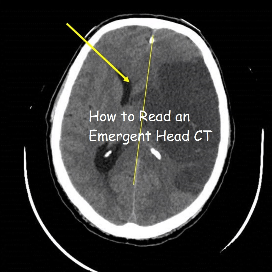 Blood Can Be Very Bad! - How to Read an Emergent Head CT — Down East ...