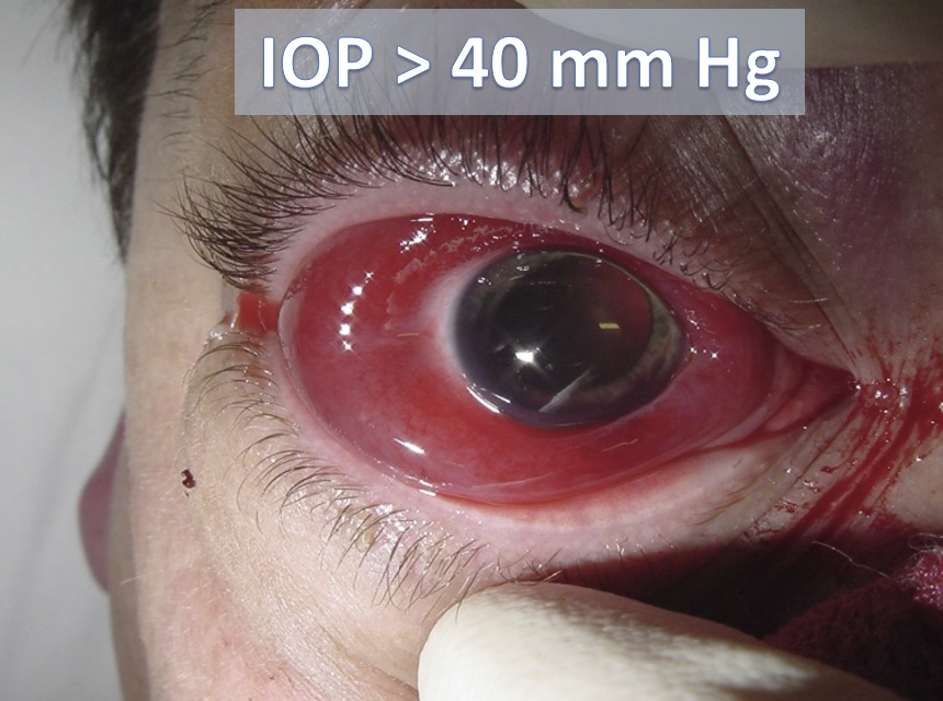 https://lifeinthefastlane.com/ophthalmology-befuddler-033/