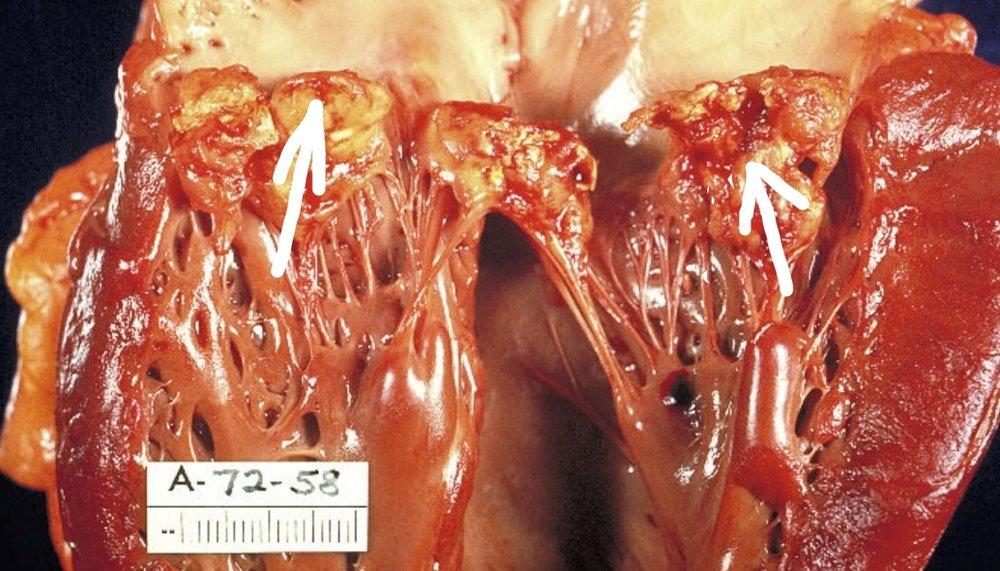Endocarditis title slide without title.jpg