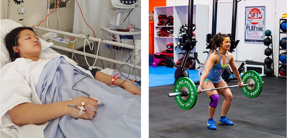 (Left) Sheena going for her ACL surgery (Right) In her strongest element at UFT Playgrounds, post recovery