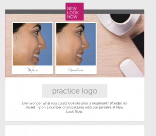 """Try On"" Treatments with New Look Now Email"