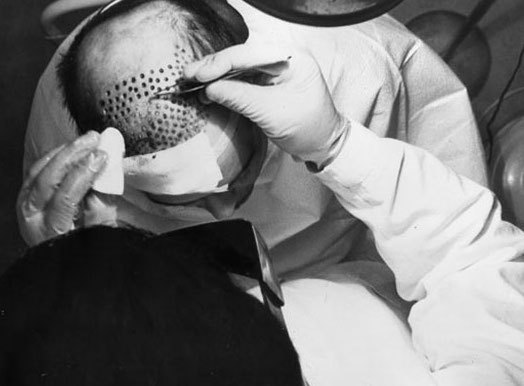 old-method-hair-transplant-plug-implantation.jpg