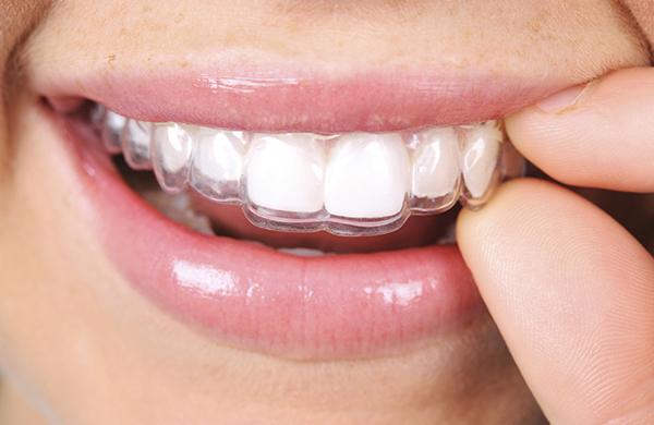 dentalwork_invisalign_jpg-600x390_jpg-600x390.jpeg