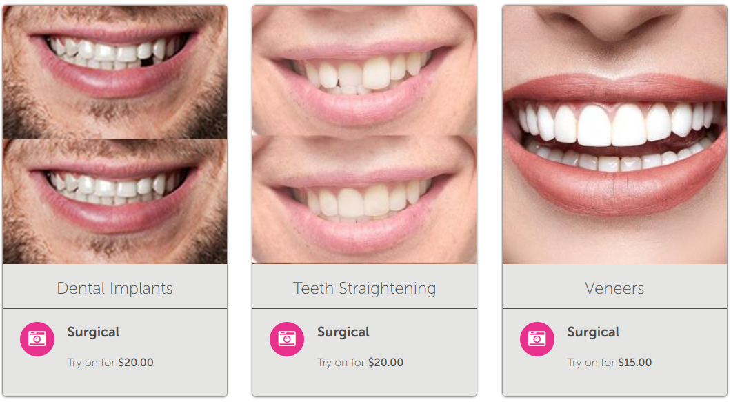 New Look Now Smile Simulations