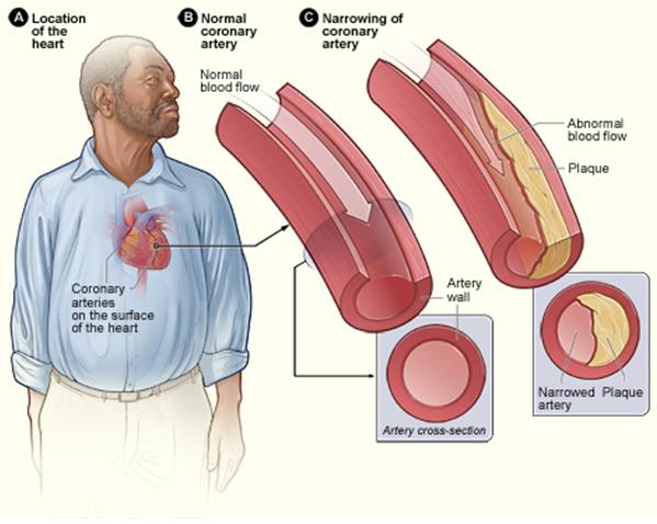 artery heart disease