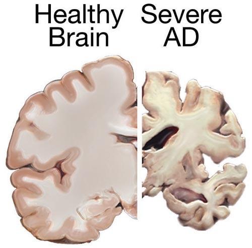 Alzheimer disease brain comparison