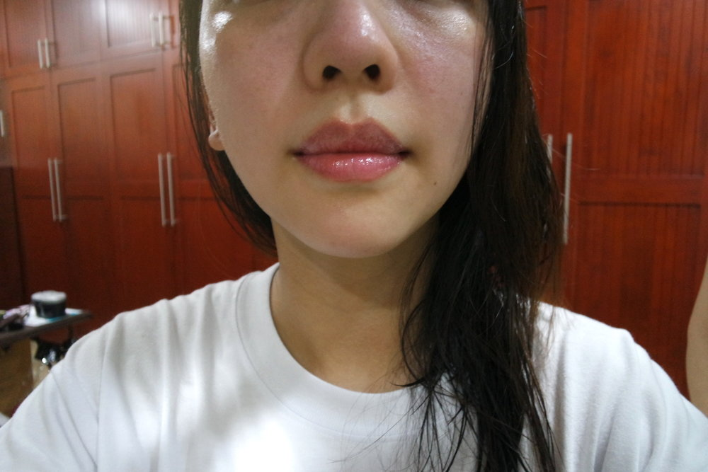 Immediately after applying April Skin Magic Oil Tint in Scarlet 101. It doesn't completely hide, but sufficiently masks purplish outer lips.