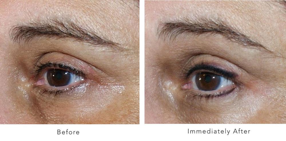 Eyeliner-&-Lashes-4.jpg