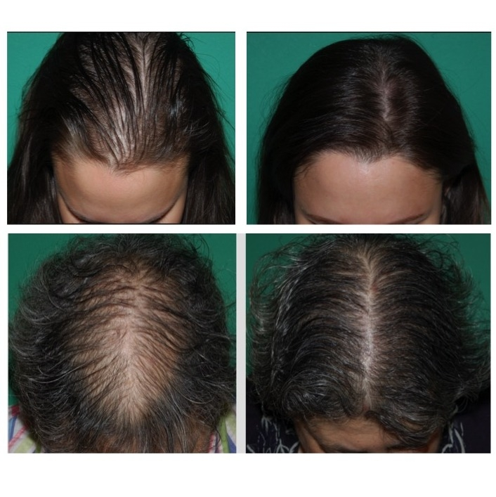 Hair Transplantation Before and After | Courtesy of Dr. Raymond J. Konior at the Chicago Hair Institute