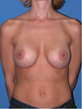 AFTER https://www1.plasticsurgery.org/before_and_after_photo_gallery/case.aspx?id=4553