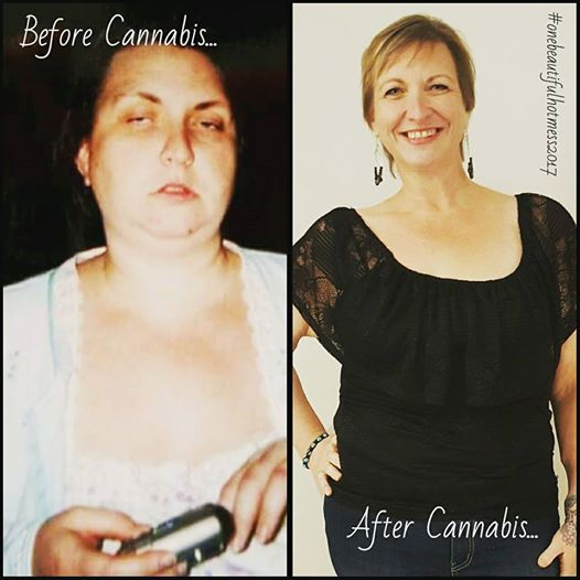 Amy mellen, before and after replacing oxycontin and other pharmaceuticals with cannabis oil. Photo: submitted