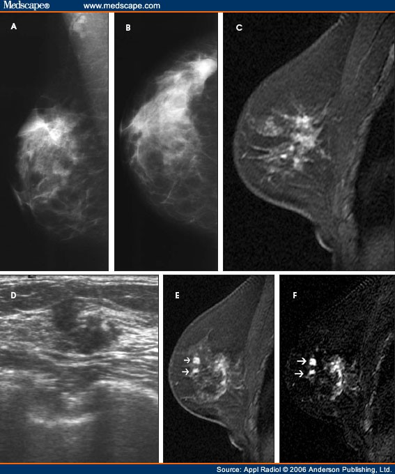 sharon presented with lobular carcinoma, a spider-web-like mass in the lobes; not a tumor that could be mistaken for a cyst. just 10-15 percent of women in the U.S. are diagnosed.