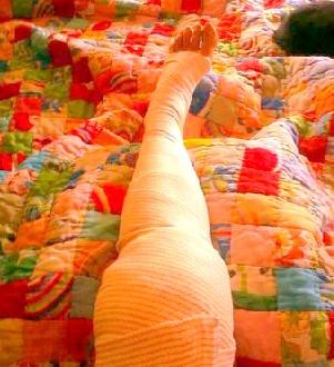 sharon used cannabis oil before and after orthoscopy, with no swelling or bruising on day two, and no need for prescription medications.  photo: sharon letts