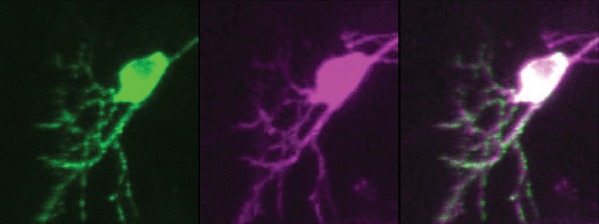 Dendritic arbor of a facial motor neuron (magenta) labeled with GFP-tagged post-synaptic density protein (PSD-95, green). Note the green puncta, indicating potential functional post-synaptic sites.