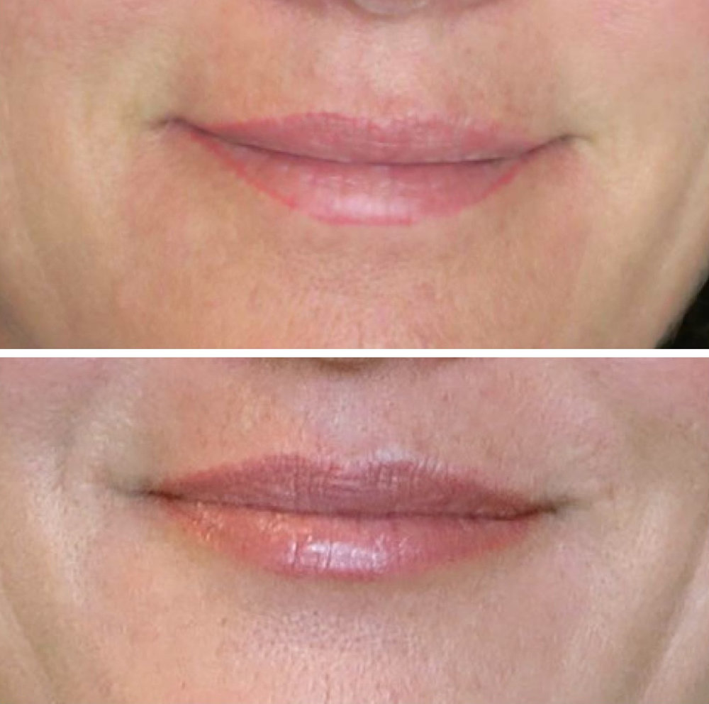 30 days healed correction of old liner with natural lip color
