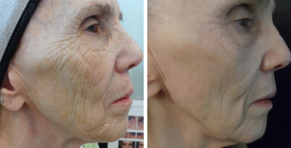74 year-0ld woman before and after 4 micro-needling treatments