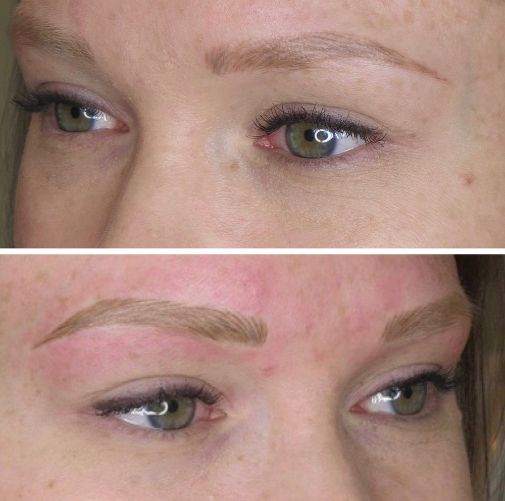 Above shows 30 days healed after first service and below is directly after follow up.