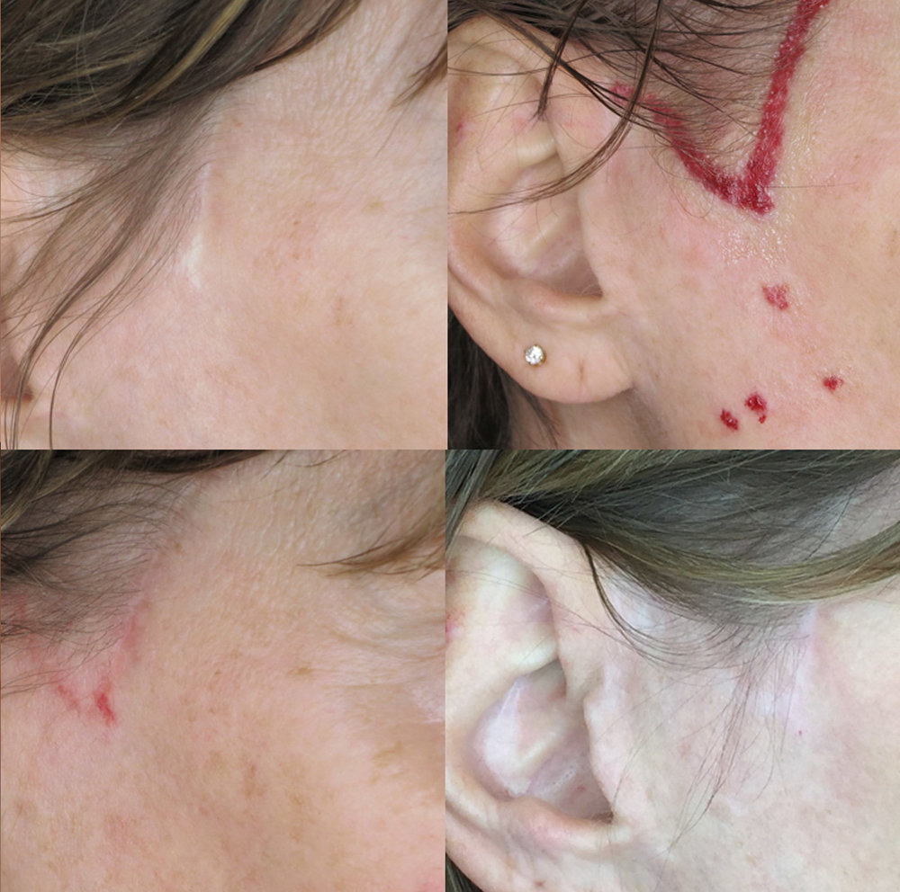 Clockwise from upper left; before, directly after, 2 months healed, 6 months healed after one service