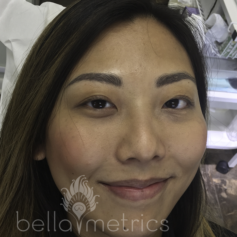 Fully healed micro-blade brows after one service prior to follow up.