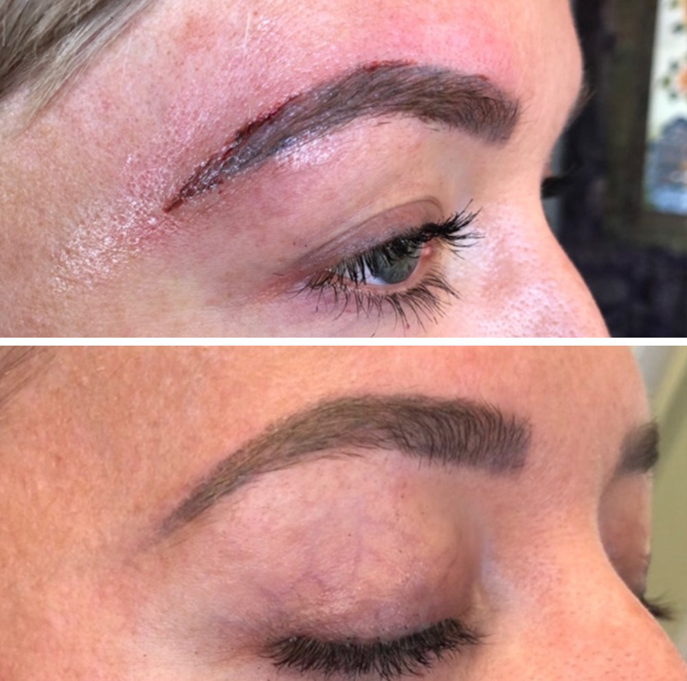 Ombre Eyebrow Tattoo Removal