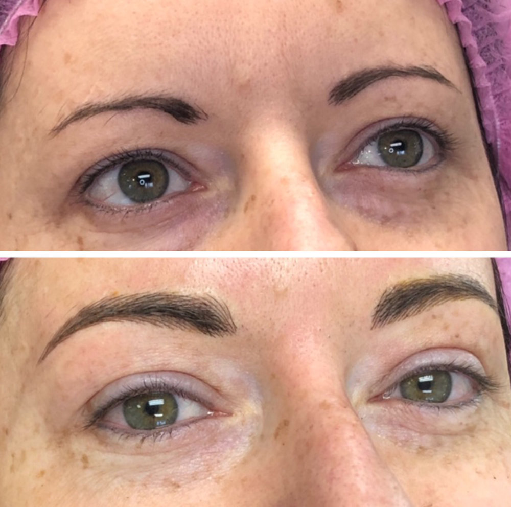 Seattle-microblading