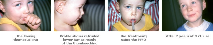 4-images.jpg
