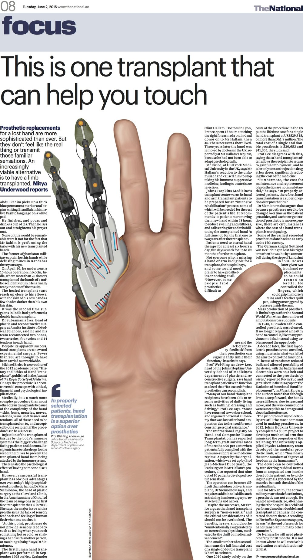 Prosthetic replacements for a lost hand are more sophisticated than ever. but they don't feel like the real thing or transmit familiar sensations