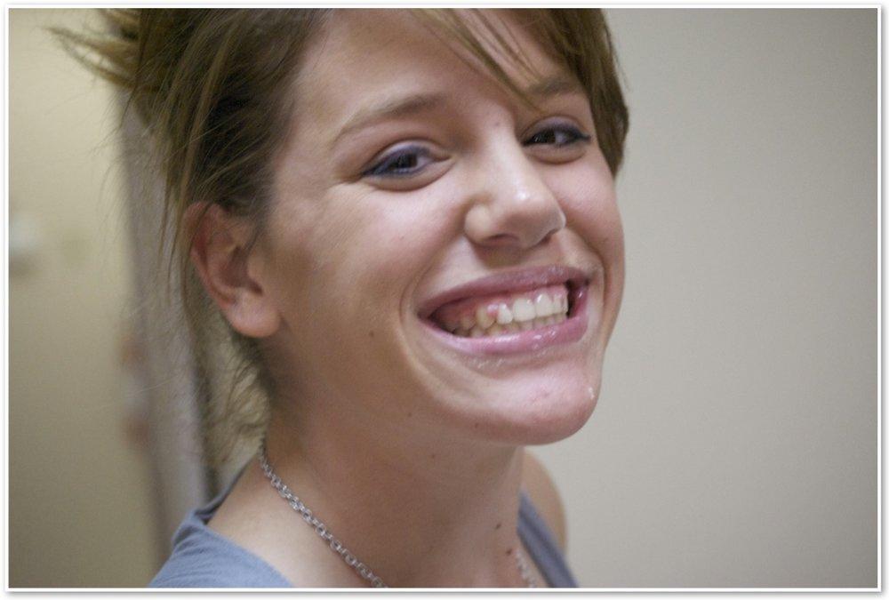 braces #2.jpg