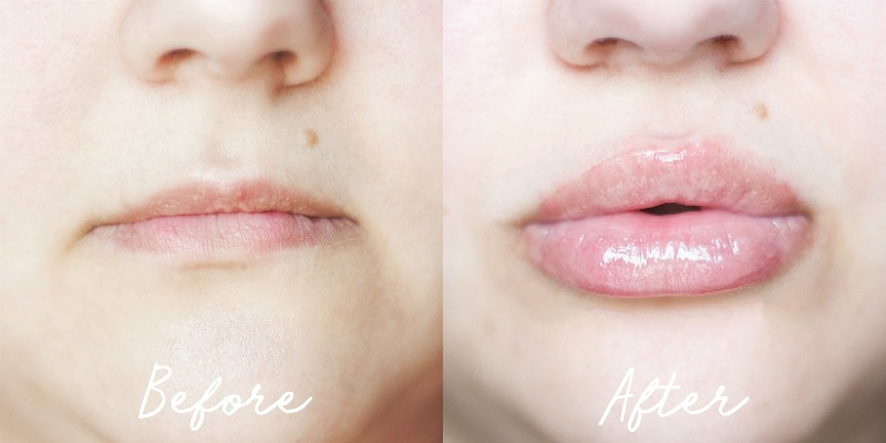 Before: My natural lips | After: My lips right after using the device for the 30th consecutive day, with a little balm applied for hydration