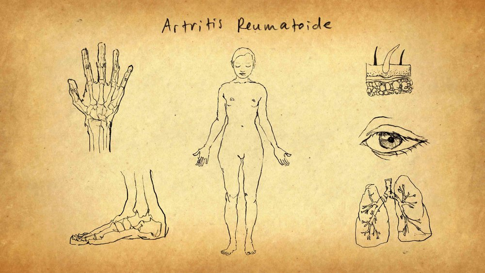 Ilustracion Artritis Reumatoide