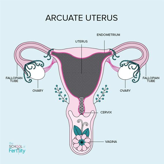 Mildly misshapen uterus