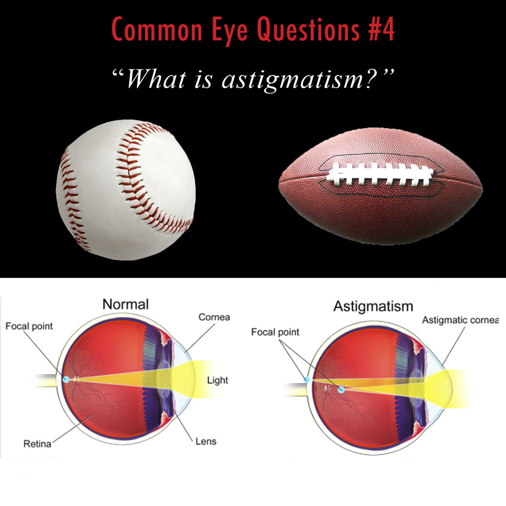 Astigmatism occurs when the focusing structures of the eye -- the cornea and lens -- are not perfectly round.