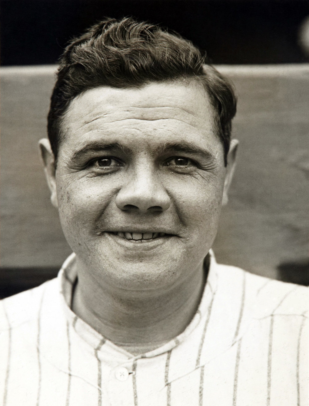 Many people don't know that Babe Ruth had severe amblyopia.