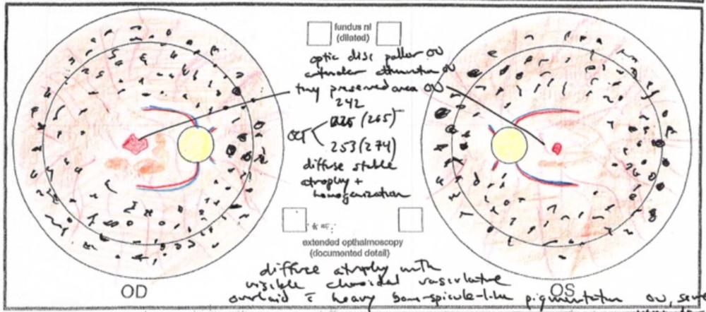 Autosomal recessive retinitis pigmentosa