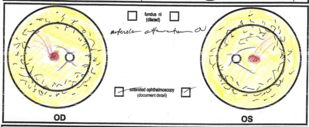 Autosomal dominant retinitis pigmentosa