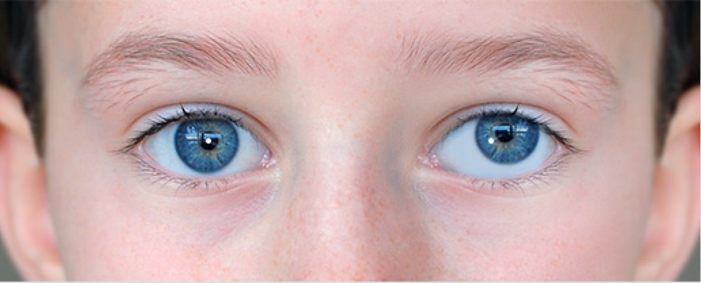 This child has a dissociated vertical deviation (DVD), a type of strabismus in which one eye will periodically drift upward, while the other eye stays put. Surgery can be curative.