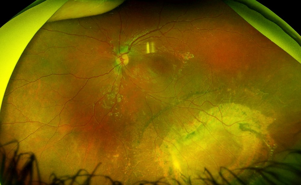Here is a photo of the retina, showing mild changes in the macula with more extensive scarring and retinal pigment epithelial atrophy in the inferotemporal periphery due to a chronic schisis cavity. The other eye had a very similar lesion.
