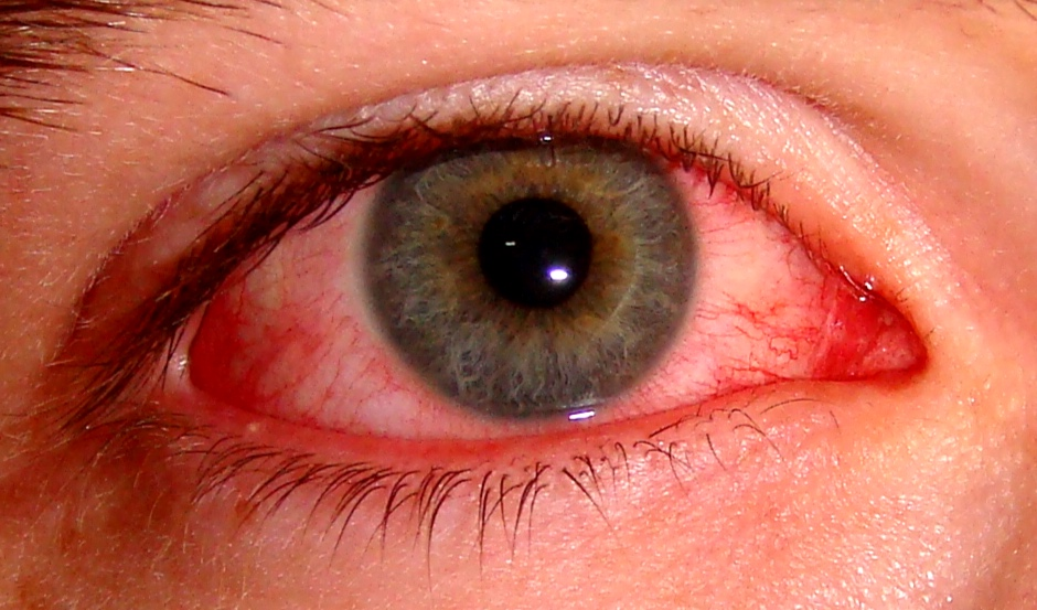 Pink eye can be due to viruses, bacteria, or allergies.