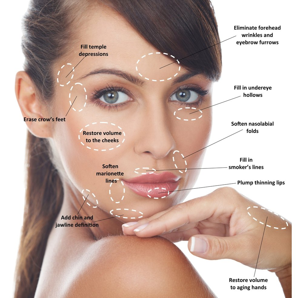 Infographic: Many Ways FIllers Help You Look Your Best
