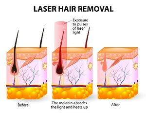 Infographic: How does laser hair removal work?