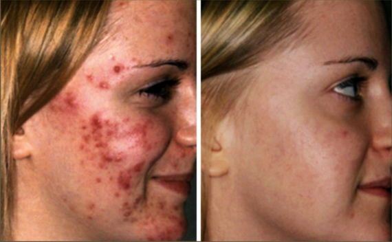 Photodynamic Therapy PDT - by Skin Envy MD Nashville.png