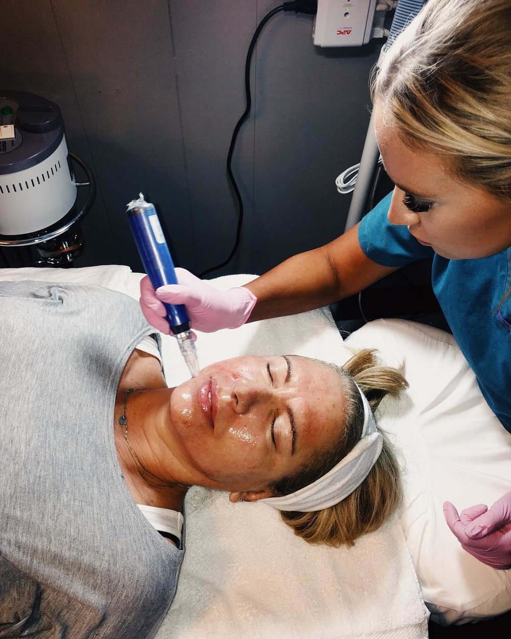 Microneedling - Botox Dysport Juvederm Restylane by Skin Envy MD Nashville.jpg